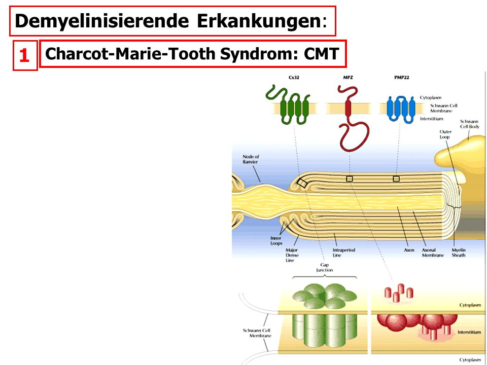 Demyelinisierende Erkankungen: Charcot-Marie-Tooth Syndrom: CMT 1