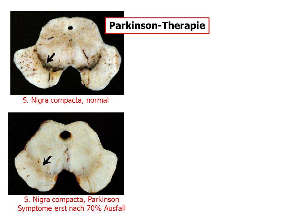 S. Nigra compacta, normal S. Nigra compacta, Parkinson Symptome erst nach 70% Ausfall Parkinson-Therapie