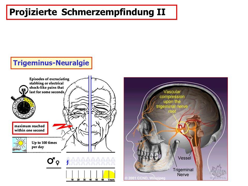 Trigeminus-Neuralgie Projizierte Schmerzempfindung II