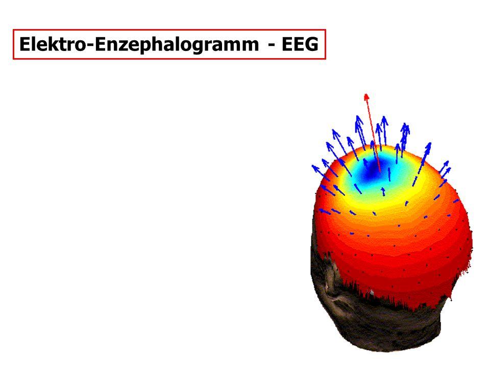 Elektro-Enzephalogramm - EEG