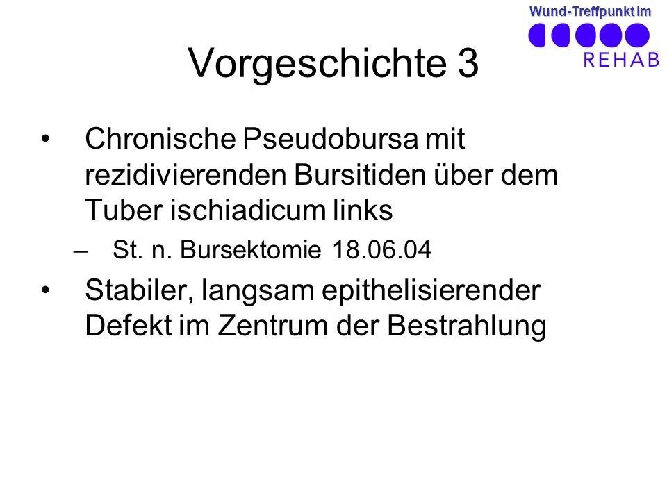 Wund-Treffpunkt im Vorgeschichte 3 Chronische Pseudobursa mit rezidivierenden Bursitiden über dem Tuber ischiadicum links –St.