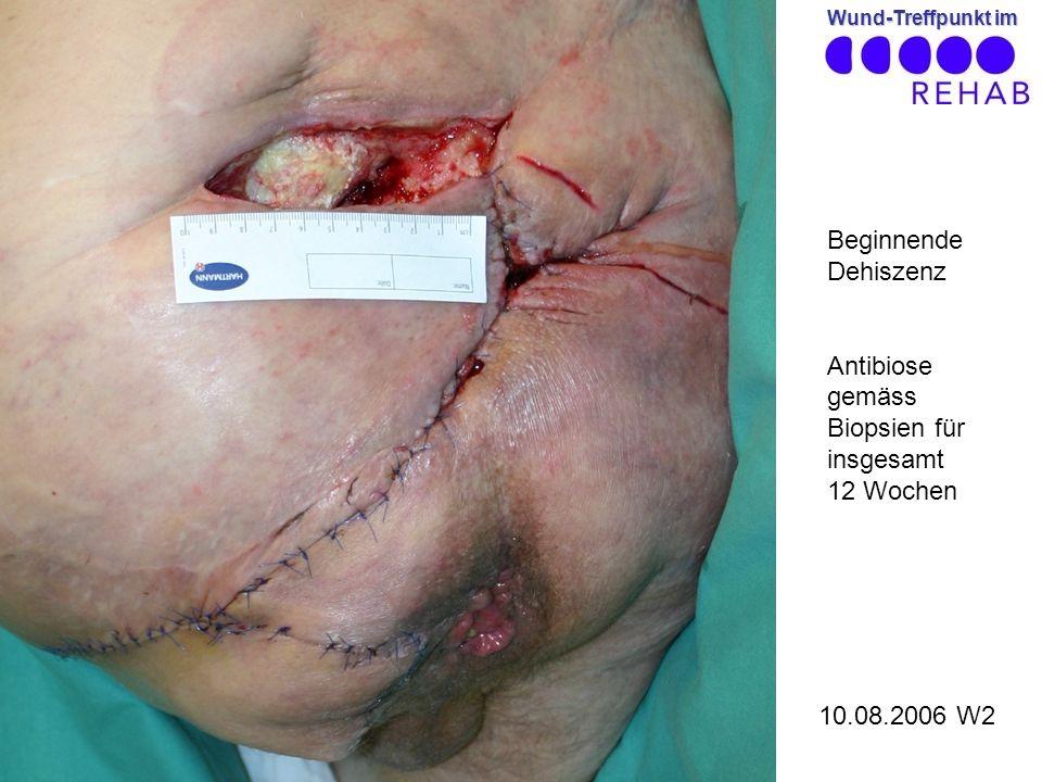 Wund-Treffpunkt im 10.08.2006 W2 Beginnende Dehiszenz Antibiose gemäss Biopsien für insgesamt 12 Wochen