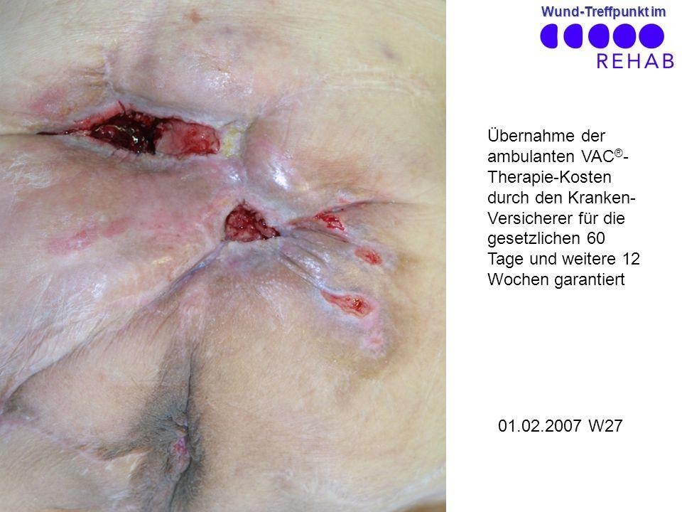 Wund-Treffpunkt im 01.02.2007 W27 Übernahme der ambulanten VAC ® - Therapie-Kosten durch den Kranken- Versicherer für die gesetzlichen 60 Tage und weitere 12 Wochen garantiert