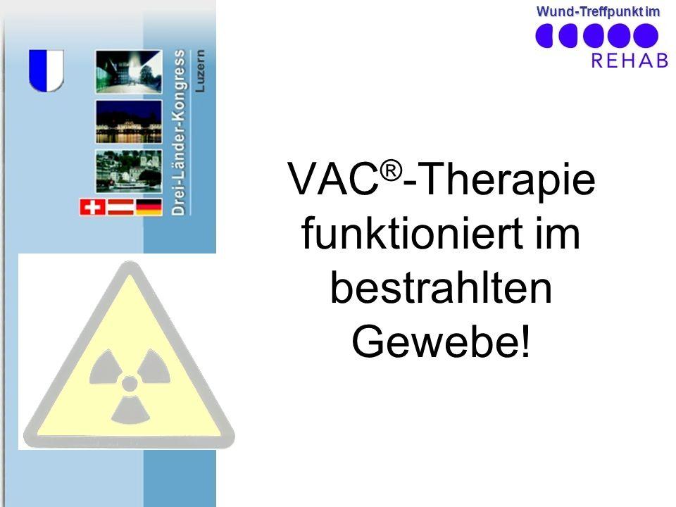 Wund-Treffpunkt im VAC ® -Therapie funktioniert im bestrahlten Gewebe!