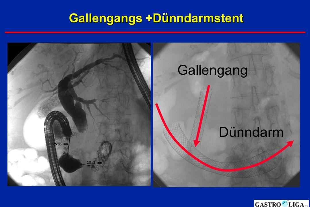 Gallengangs +Dünndarmstent Gallengang Dünndarm