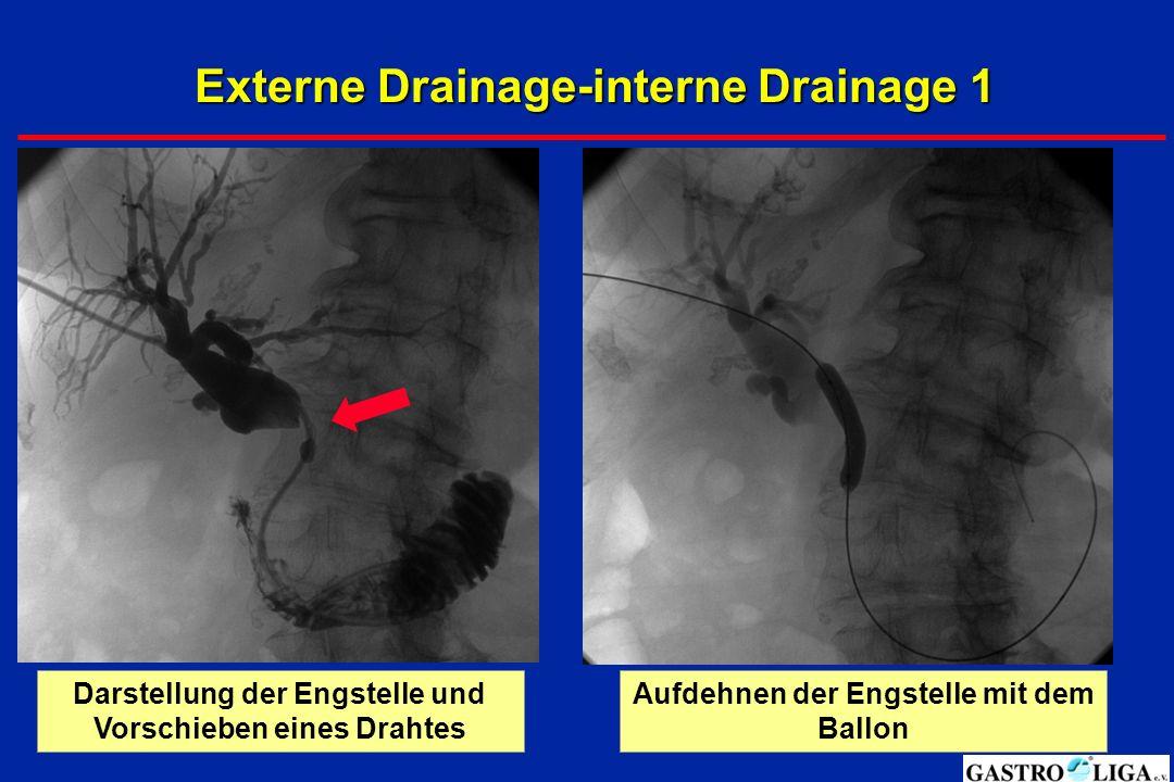 Externe Drainage-interne Drainage 2 Guter Abfluss in den DünndarmEinlegen eines Metallstents/Prothese