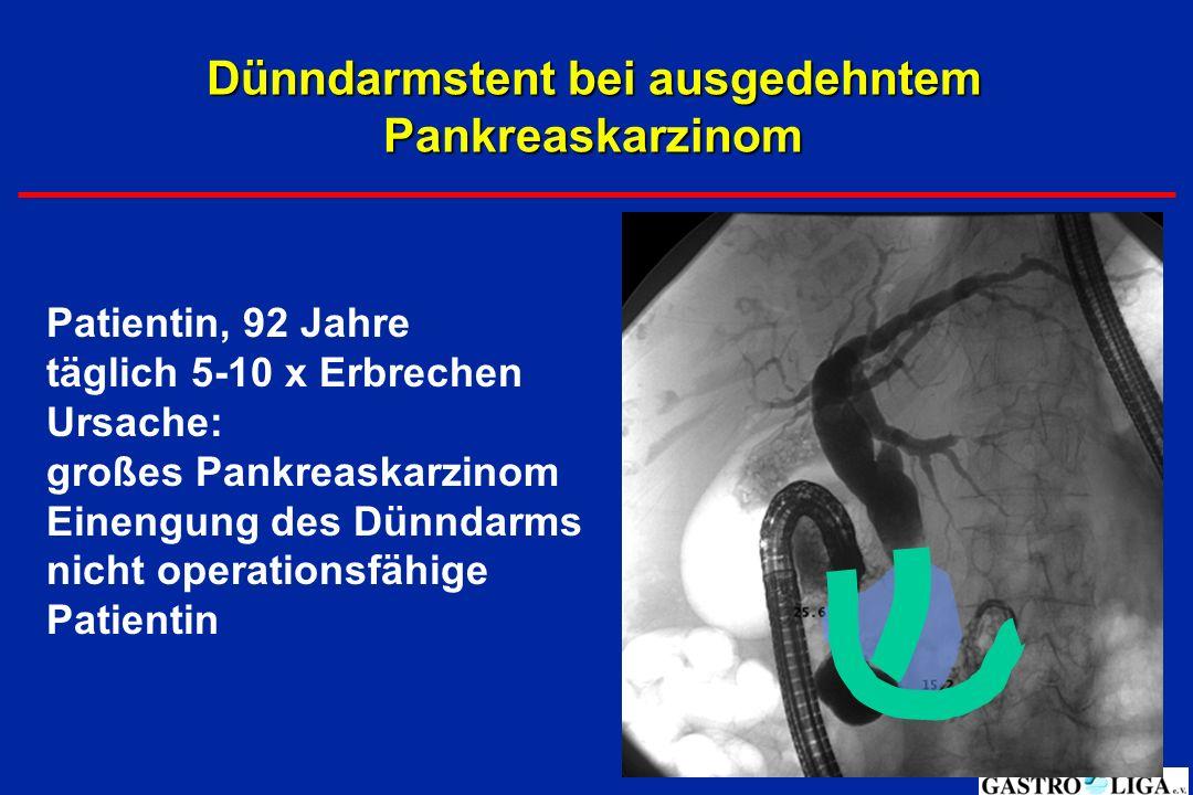 Dünndarmstent bei ausgedehntem Pankreaskarzinom Patientin, 92 Jahre täglich 5-10 x Erbrechen Ursache: großes Pankreaskarzinom Einengung des Dünndarms