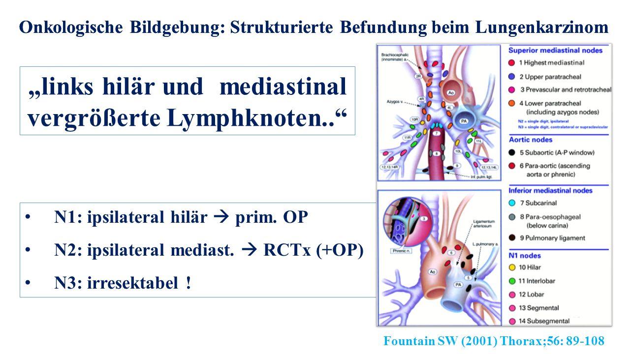 """Onkologische Bildgebung: Strukturierte Befundung beim Lungenkarzinom """"links hilär und mediastinal vergrößerte Lymphknoten.. N1: ipsilateral hilär  prim."""