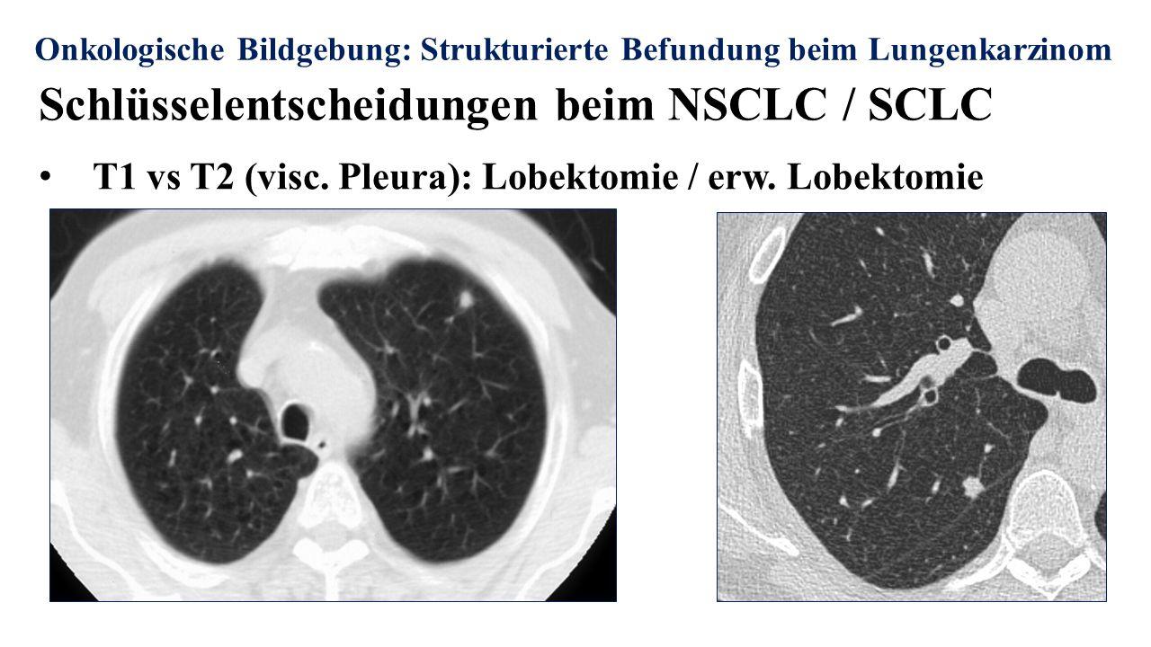 Onkologische Bildgebung: Strukturierte Befundung beim Lungenkarzinom Schlüsselentscheidungen beim NSCLC / SCLC T1 vs T2 (visc.