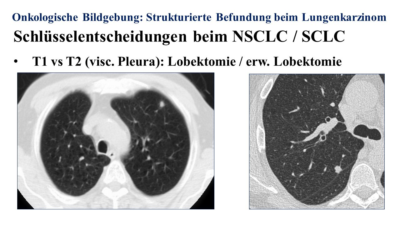 Onkologische Bildgebung: Strukturierte Befundung beim Lungenkarzinom Schlüsselentscheidungen beim NSCLC / SCLC T1 vs T2 (visc. Pleura): Lobektomie / e
