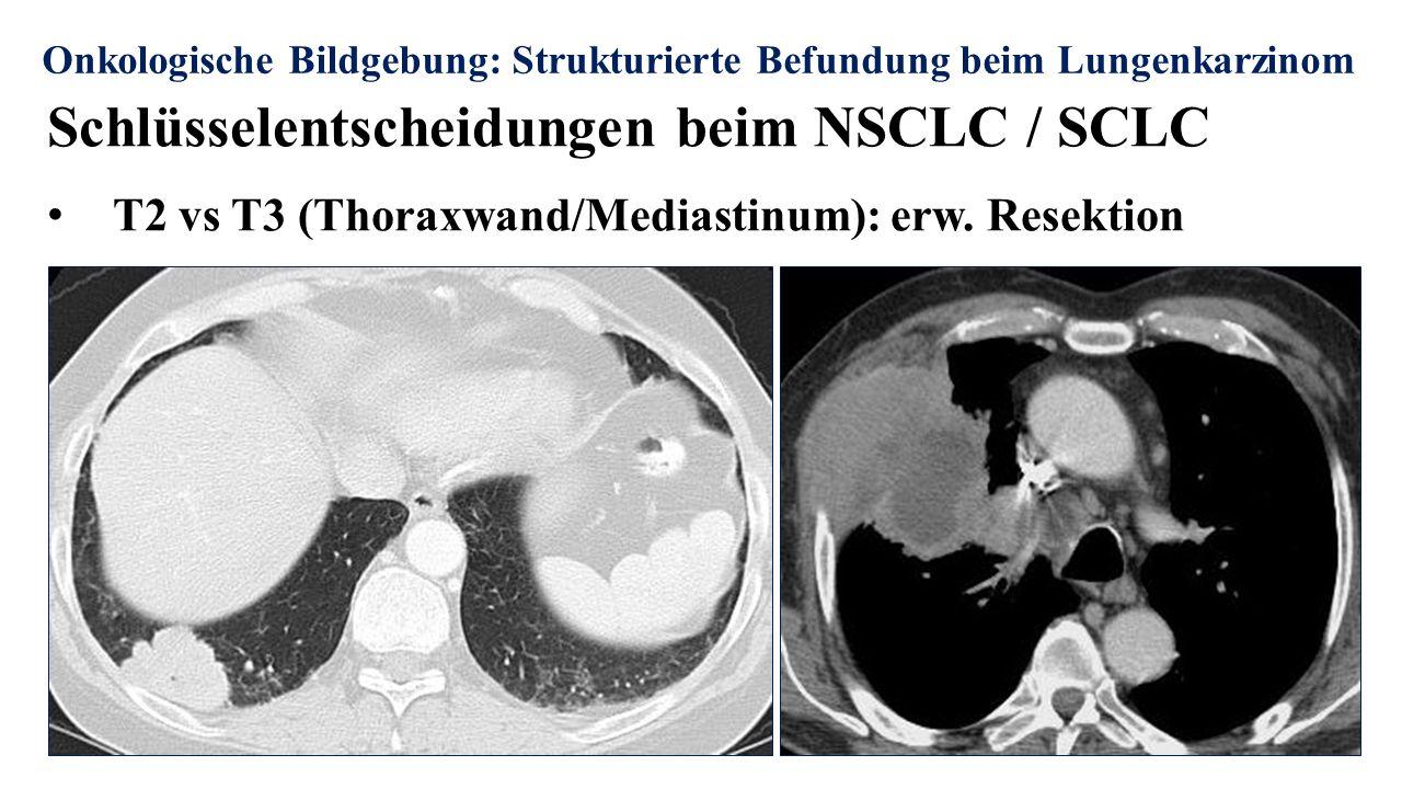 Onkologische Bildgebung: Strukturierte Befundung beim Lungenkarzinom Schlüsselentscheidungen beim NSCLC / SCLC T2 vs T3 (Thoraxwand/Mediastinum): erw.