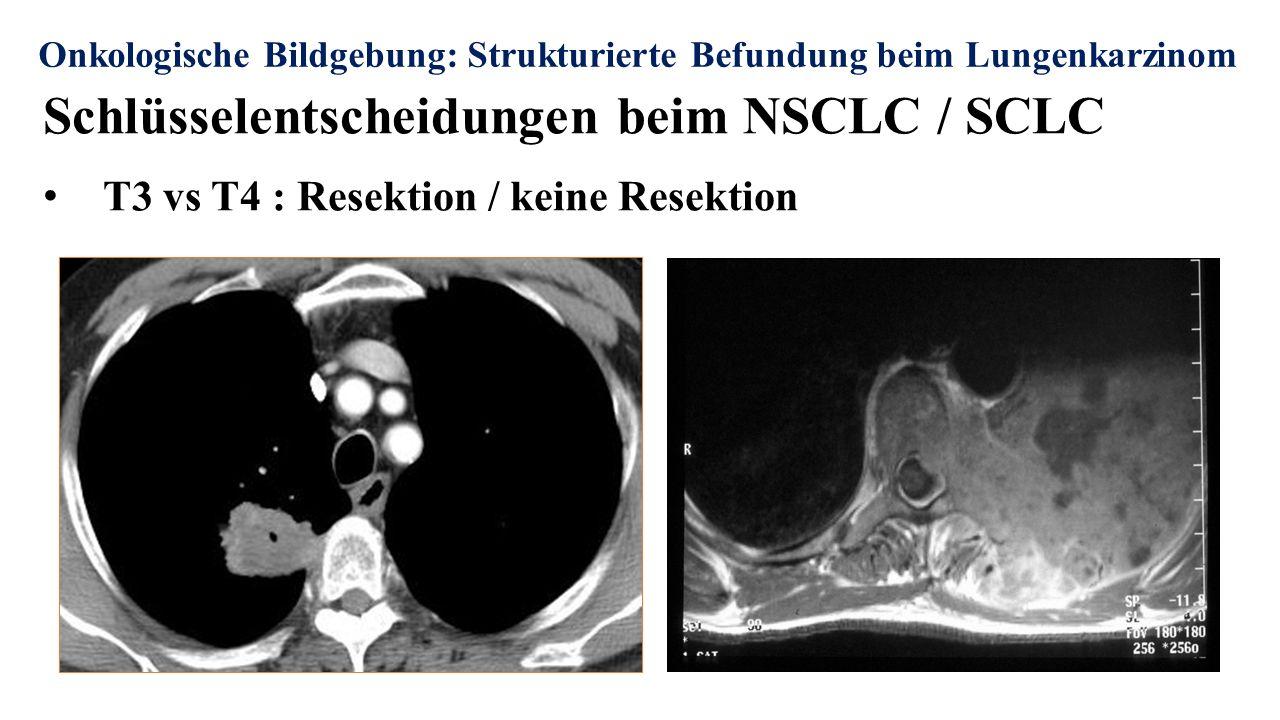 Onkologische Bildgebung: Strukturierte Befundung beim Lungenkarzinom Schlüsselentscheidungen beim NSCLC / SCLC T3 vs T4 : Resektion / keine Resektion
