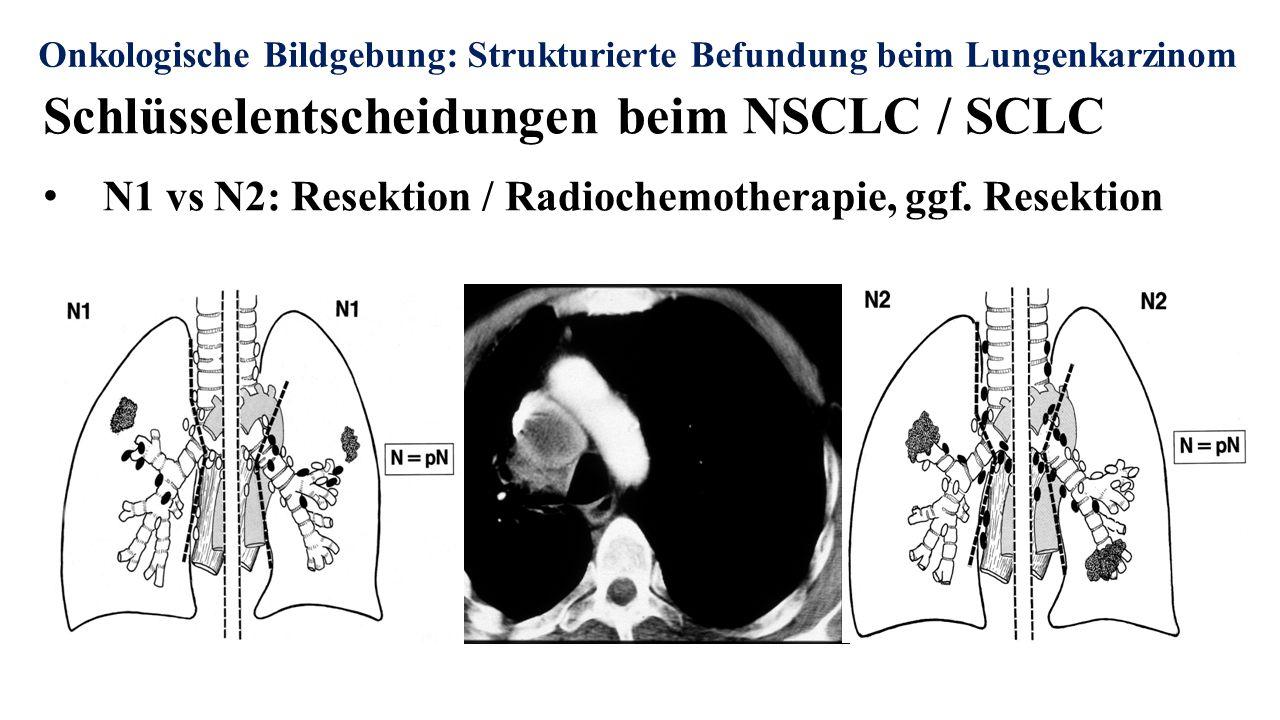 Onkologische Bildgebung: Strukturierte Befundung beim Lungenkarzinom Schlüsselentscheidungen beim NSCLC / SCLC N1 vs N2: Resektion / Radiochemotherapie, ggf.