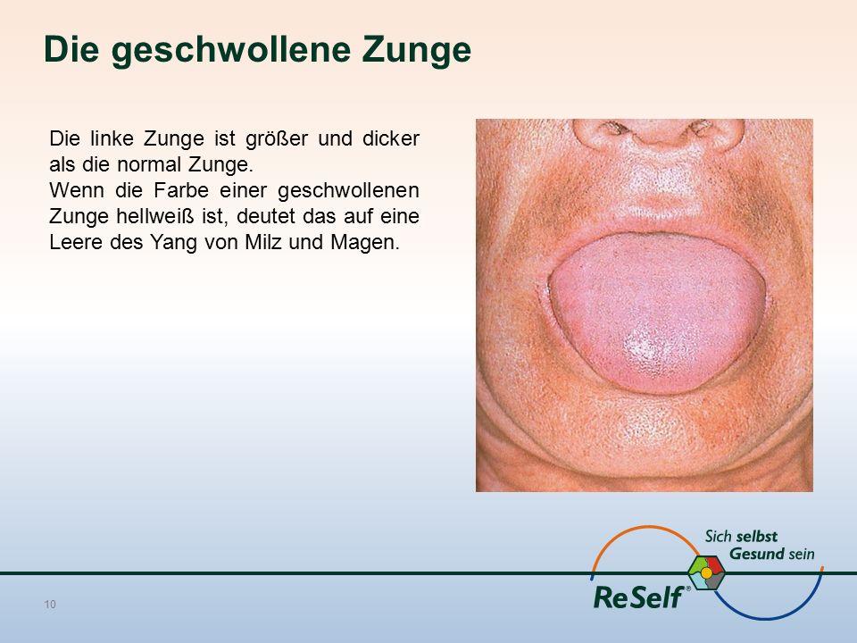Die geschwollene Zunge 10 Die linke Zunge ist größer und dicker als die normal Zunge.