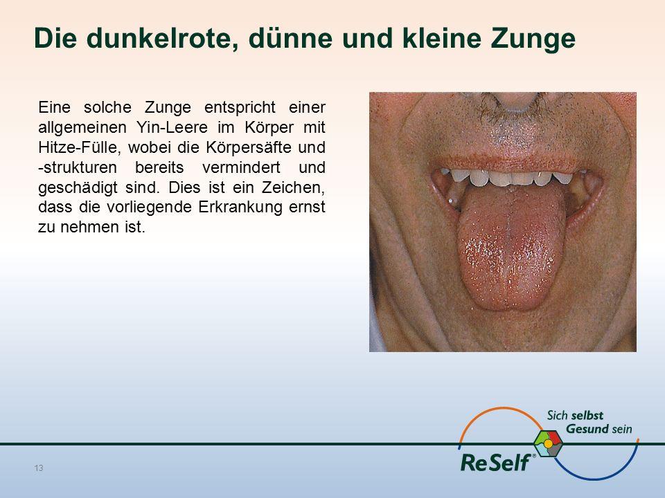 Die dunkelrote, dünne und kleine Zunge 13 Eine solche Zunge entspricht einer allgemeinen Yin-Leere im Körper mit Hitze-Fülle, wobei die Körpersäfte und -strukturen bereits vermindert und geschädigt sind.