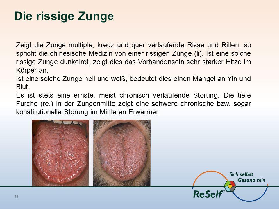 Die rissige Zunge 14 Zeigt die Zunge multiple, kreuz und quer verlaufende Risse und Rillen, so spricht die chinesische Medizin von einer rissigen Zunge (li).