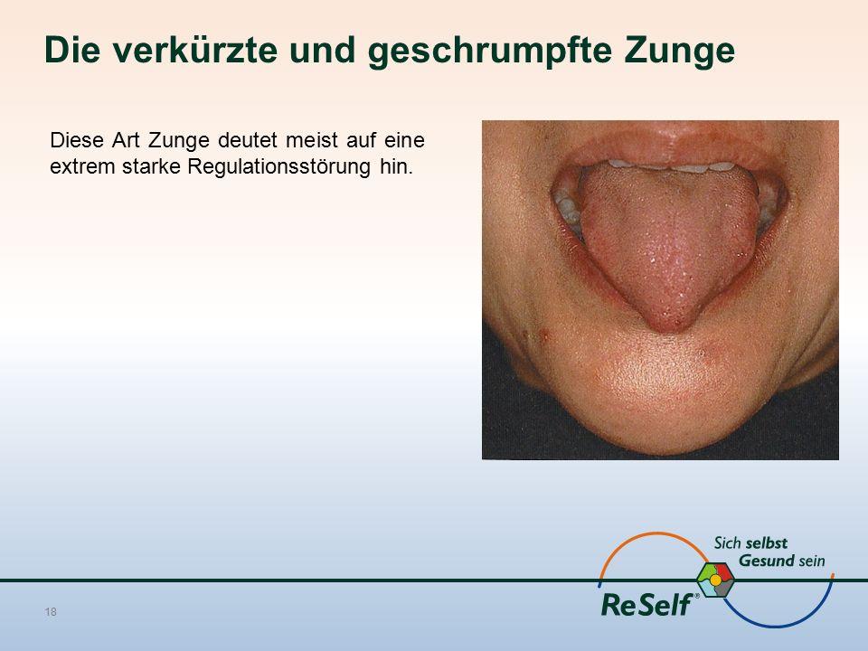 Die verkürzte und geschrumpfte Zunge 18 Diese Art Zunge deutet meist auf eine extrem starke Regulationsstörung hin.