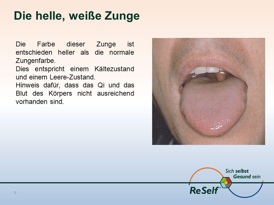 Die helle, weiße Zunge 3 Die Farbe dieser Zunge ist entschieden heller als die normale Zungenfarbe. Dies entspricht einem Kältezustand und einem Leere