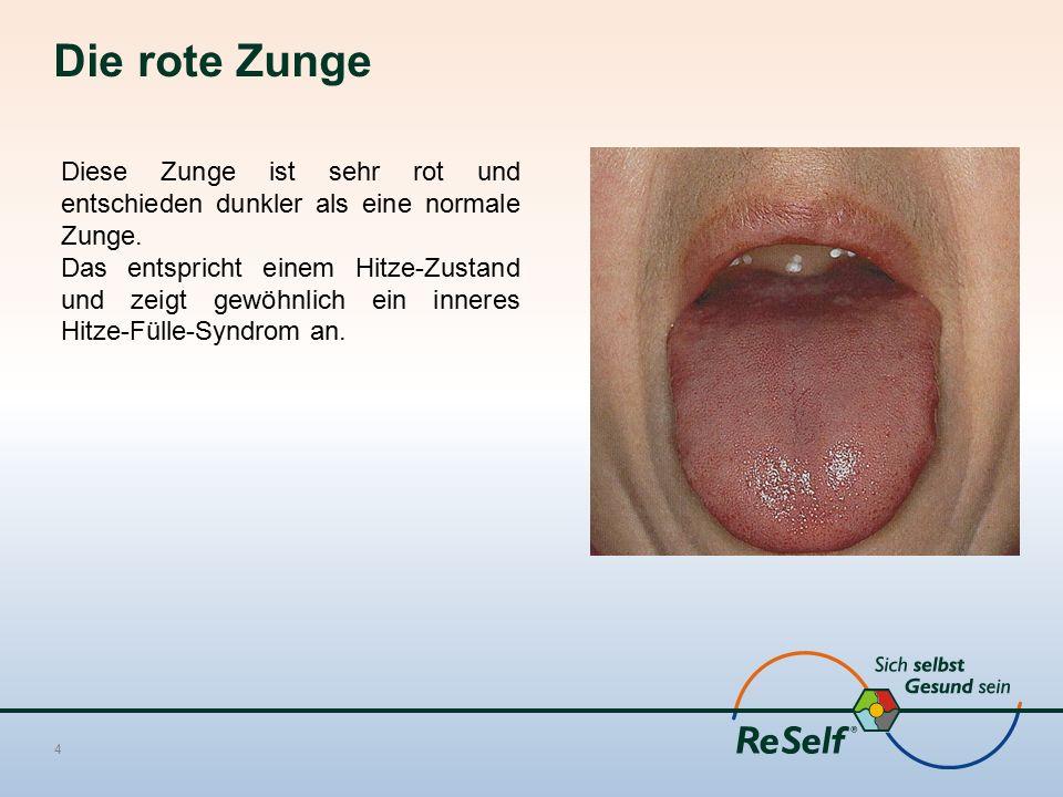 Die rote Zunge 4 Diese Zunge ist sehr rot und entschieden dunkler als eine normale Zunge.