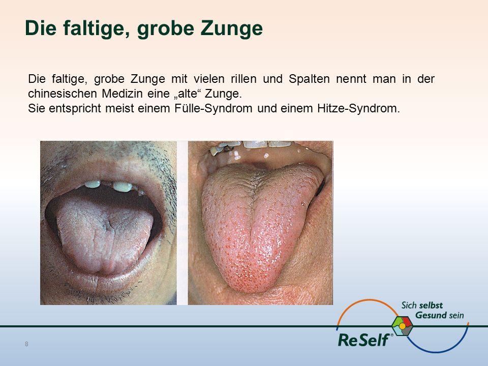 """Die faltige, grobe Zunge 8 Die faltige, grobe Zunge mit vielen rillen und Spalten nennt man in der chinesischen Medizin eine """"alte Zunge."""
