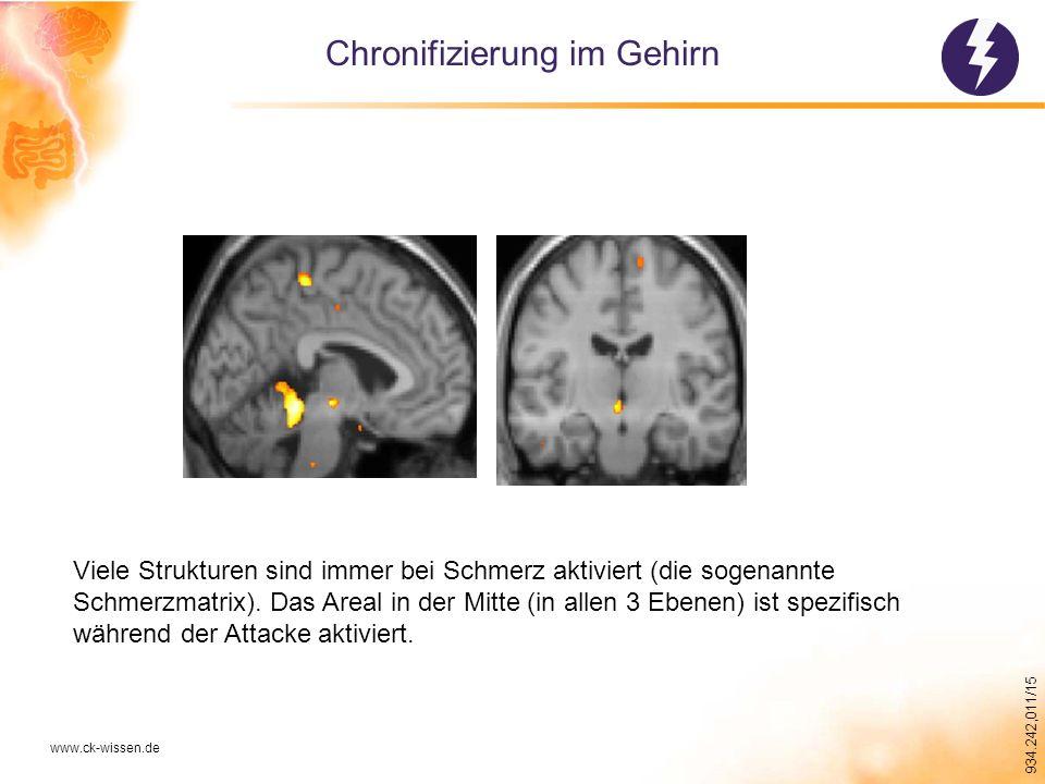 934.242,011/15 Chronifizierung im Gehirn www.ck-wissen.de Viele Strukturen sind immer bei Schmerz aktiviert (die sogenannte Schmerzmatrix).