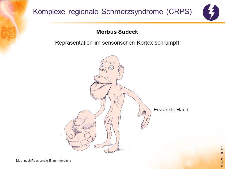 934.242,011/15 Komplexe regionale Schmerzsyndrome (CRPS) Morbus Sudeck Repräsentation im sensorischen Kortex schrumpft Erkrankte Hand Mod.
