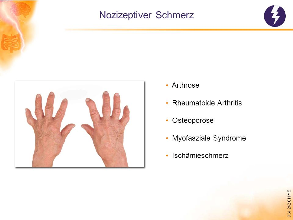 934.242,011/15 Nozizeptiver Schmerz Arthrose Rheumatoide Arthritis Osteoporose Myofasziale Syndrome Ischämieschmerz