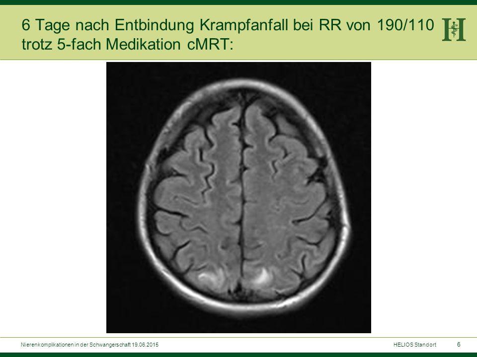 6 6 Tage nach Entbindung Krampfanfall bei RR von 190/110 trotz 5-fach Medikation cMRT: HELIOS StandortNierenkomplikationen in der Schwangerschaft 19.0