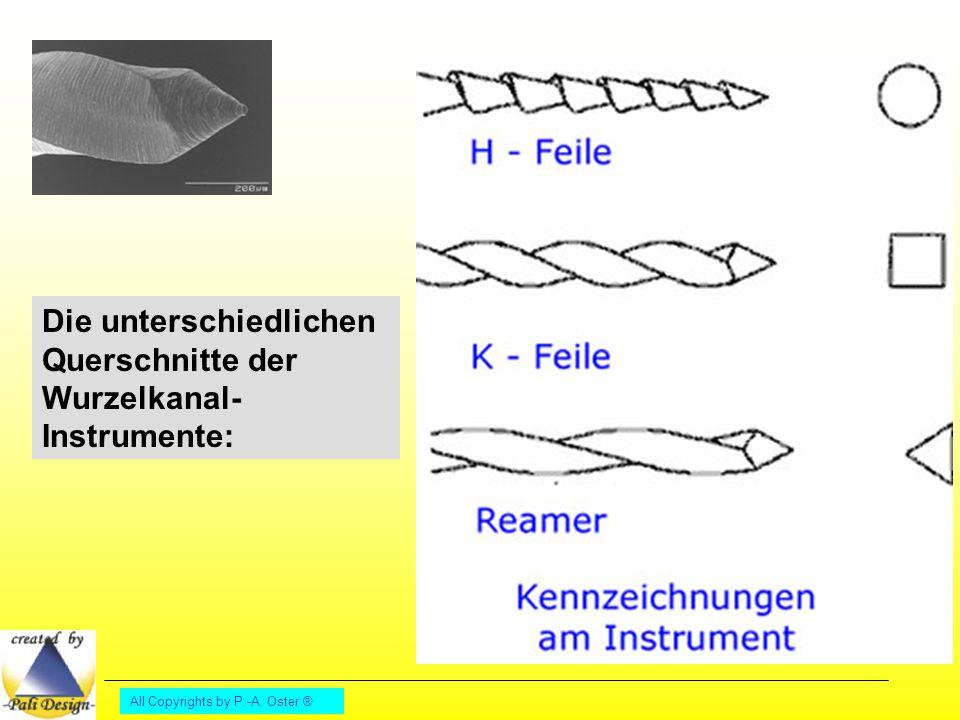 Die unterschiedlichen Querschnitte der Wurzelkanal- Instrumente: