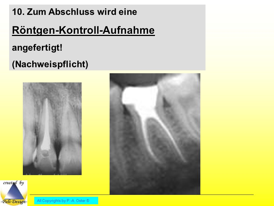 All Copyrights by P.-A.Oster ® 10. Zum Abschluss wird eineRöntgen-Kontroll-Aufnahme angefertigt.