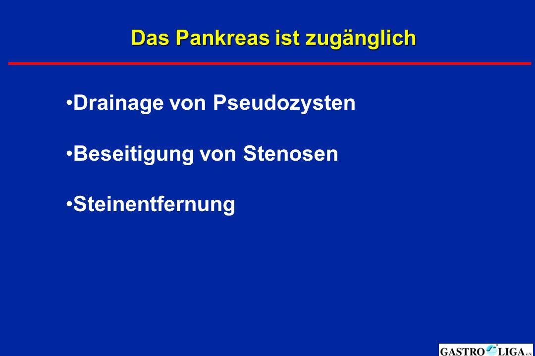 Das Pankreas ist zugänglich Drainage von Pseudozysten Beseitigung von Stenosen Steinentfernung