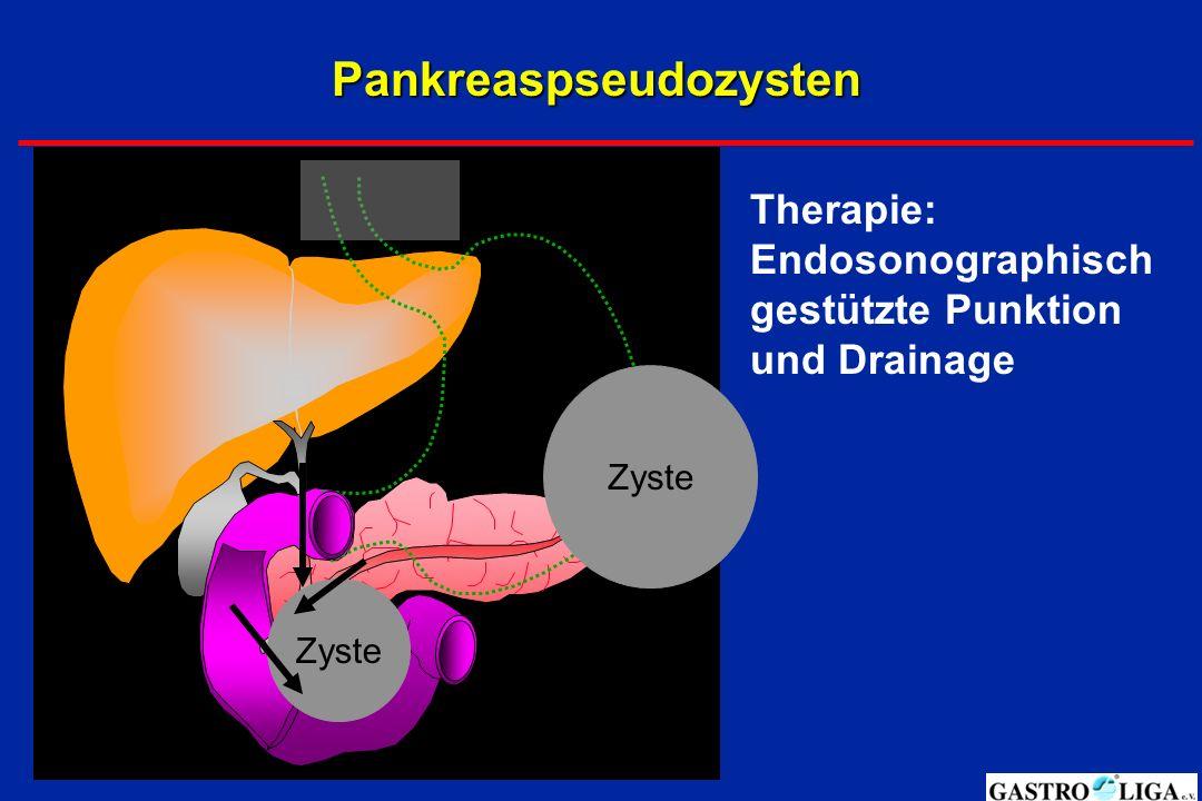 Pankreaspseudozysten Zyste Therapie: Endosonographisch gestützte Punktion und Drainage