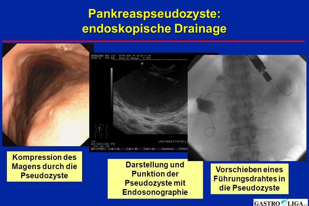 Pankreaspseudozyste: endoskopische Drainage Kompression des Magens durch die Pseudozyste Darstellung und Punktion der Pseudozyste mit Endosonographie Vorschieben eines Führungsdrahtes in die Pseudozyste