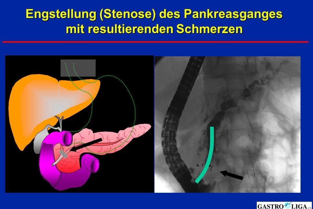 Engstellung (Stenose) des Pankreasganges mit resultierenden Schmerzen
