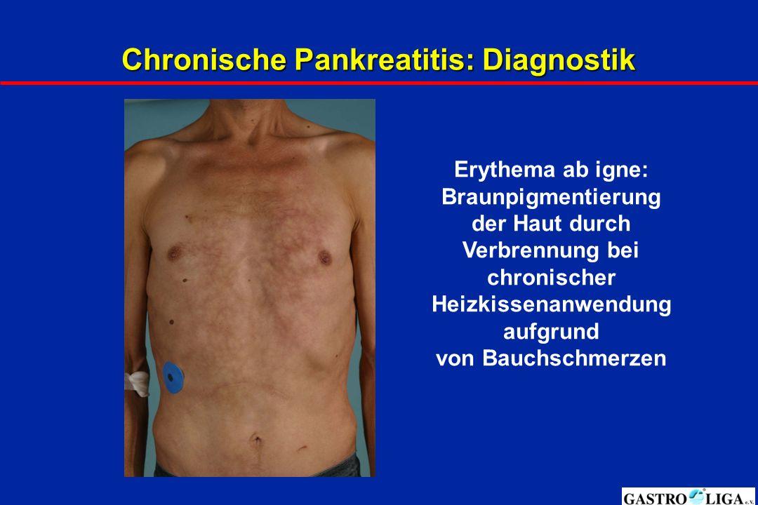 Chronische Pankreatitis: Diagnostik Erythema ab igne: Braunpigmentierung der Haut durch Verbrennung bei chronischer Heizkissenanwendung aufgrund von Bauchschmerzen