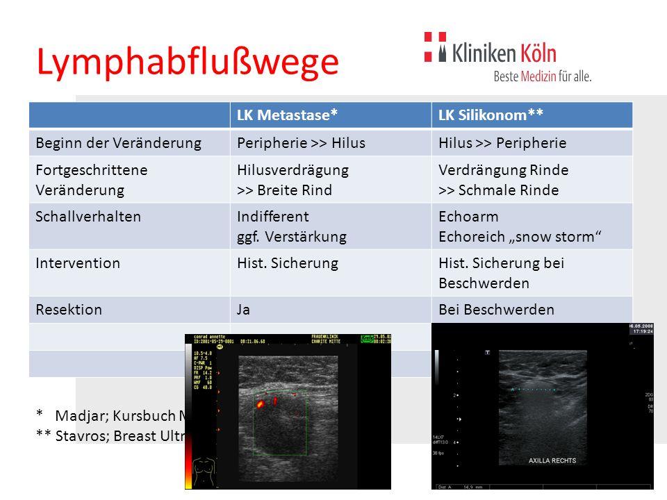 Lymphabflußwege LK Metastase*LK Silikonom** Beginn der VeränderungPeripherie >> HilusHilus >> Peripherie Fortgeschrittene Veränderung Hilusverdrägung