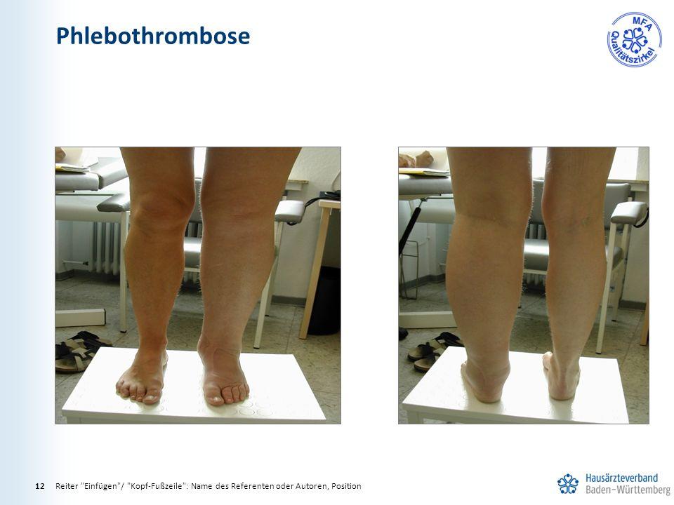 Phlebothrombose Reiter