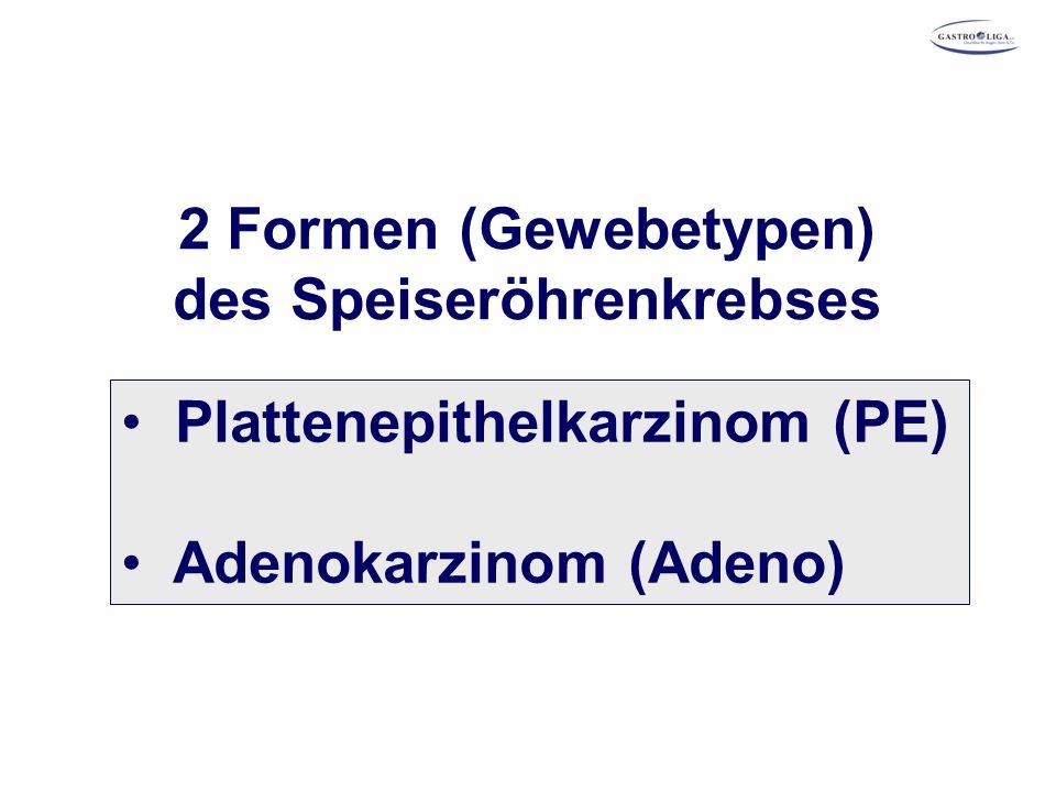 2 Formen (Gewebetypen) des Speiseröhrenkrebses Plattenepithelkarzinom (PE) Adenokarzinom (Adeno)