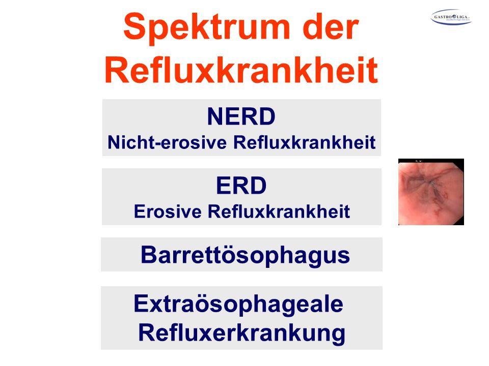Spektrum der Refluxkrankheit NERD Nicht-erosive Refluxkrankheit ERD Erosive Refluxkrankheit Extraösophageale Refluxerkrankung Barrettösophagus