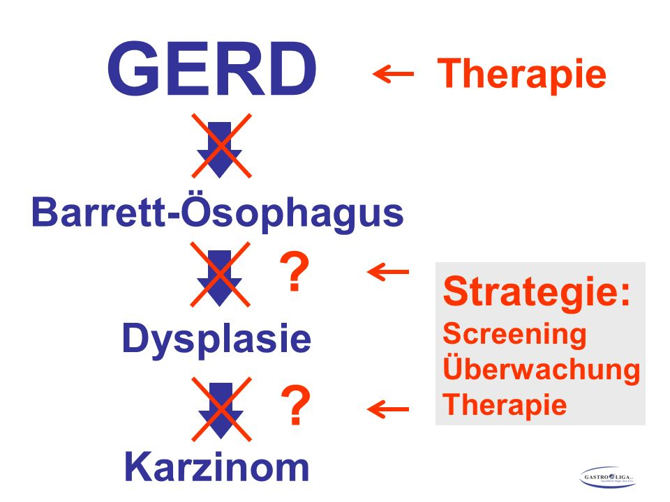 Barrett-Ösophagus Dysplasie Karzinom Strategie: Screening Überwachung Therapie GERD Therapie