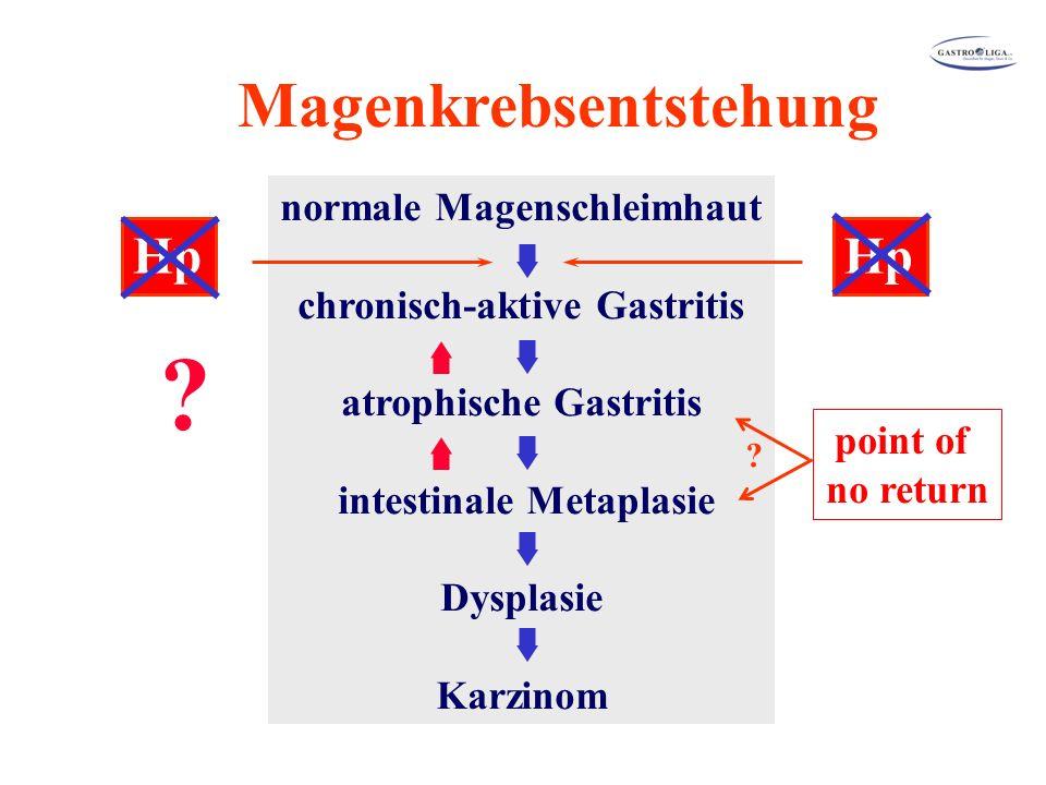 Magenkrebsentstehung normale Magenschleimhaut chronisch-aktive Gastritis atrophische Gastritis intestinale Metaplasie Dysplasie Karzinom Hp .