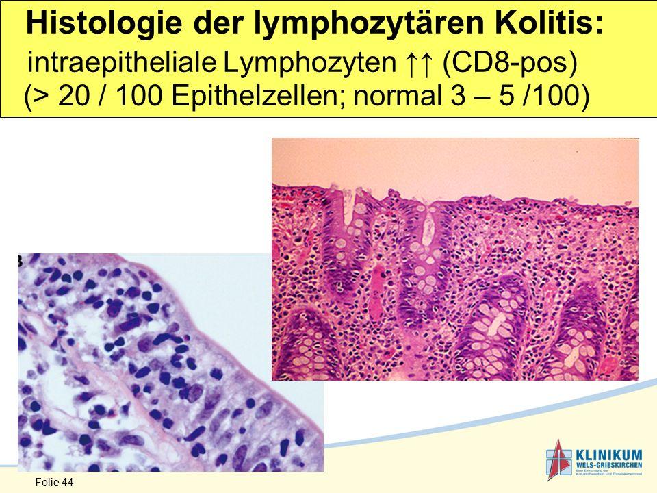 Folie 44 Histologie der lymphozytären Kolitis: intraepitheliale Lymphozyten ↑↑ (CD8-pos) (> 20 / 100 Epithelzellen; normal 3 – 5 /100)