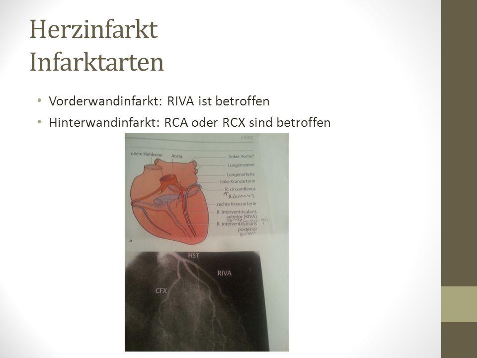 Herzinfarkt Infarktarten Vorderwandinfarkt: RIVA ist betroffen Hinterwandinfarkt: RCA oder RCX sind betroffen