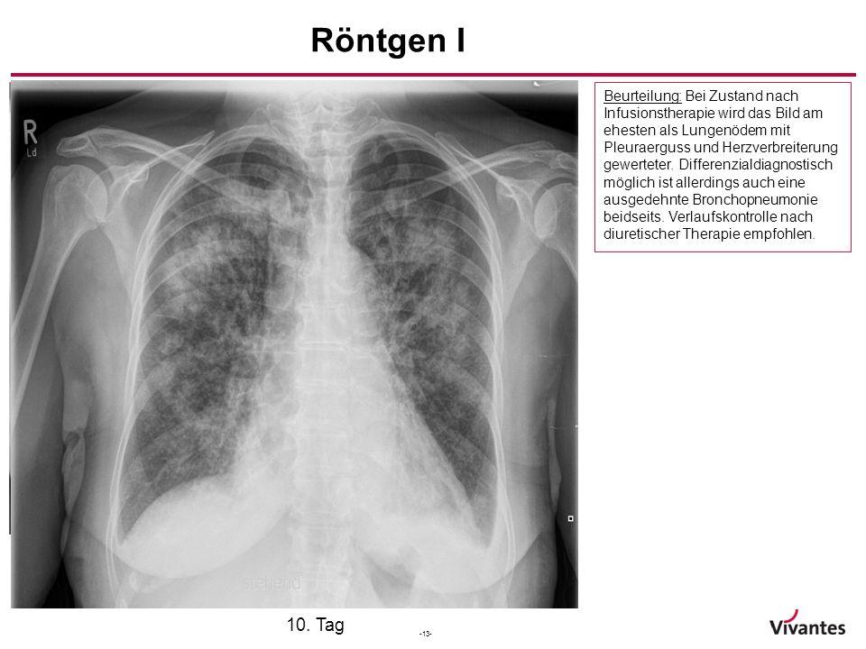 -13- Aufnahmetag 7. Tag Röntgen I 10. Tag Beurteilung: Bei Zustand nach Infusionstherapie wird das Bild am ehesten als Lungenödem mit Pleuraerguss und