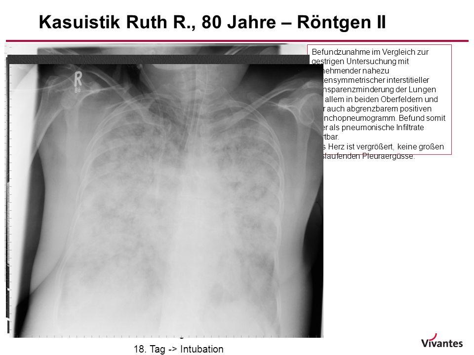 -15- Befundzunahme im Vergleich zur gestrigen Untersuchung mit zunehmender nahezu seitensymmetrischer interstitieller Transparenzminderung der Lungen
