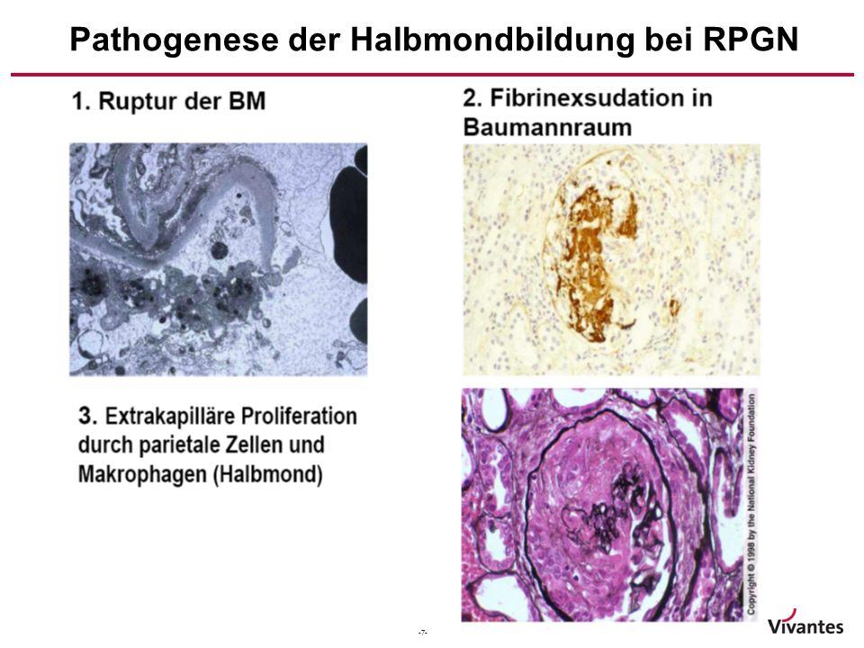 -7- Pathogenese der Halbmondbildung bei RPGN