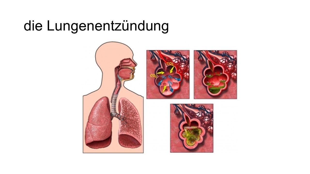 die Lungenentzündung
