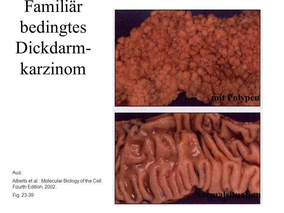 Aus: Alberts et al.: Molecular Biology of the Cell. Fourth Edition, 2002. Fig. 23-39 Familiär bedingtes Dickdarm- karzinom mit Polypen Normalsituation