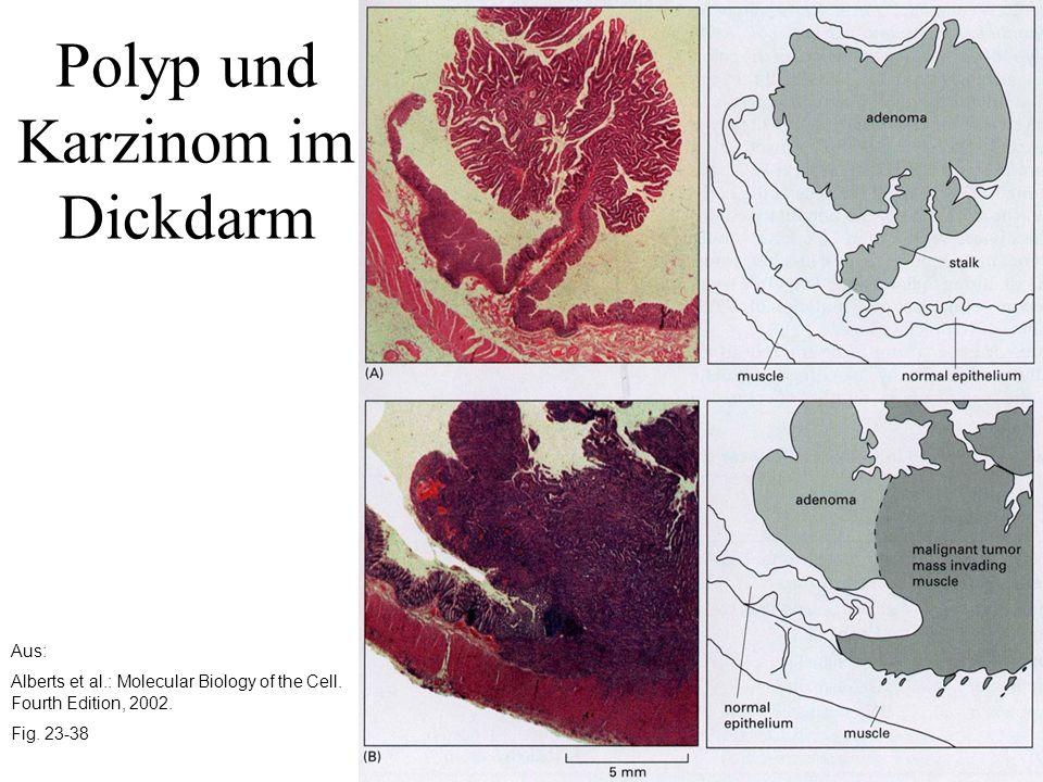 Aus: Alberts et al.: Molecular Biology of the Cell. Fourth Edition, 2002. Fig. 23-38 Polyp und Karzinom im Dickdarm