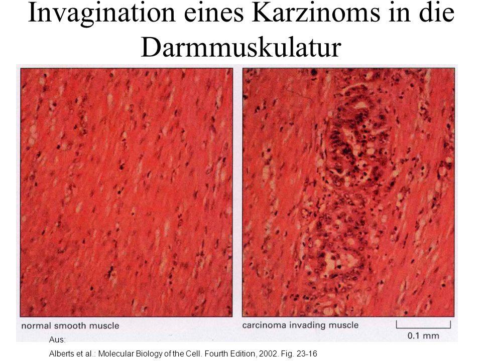 Aus: Alberts et al.: Molecular Biology of the Cell. Fourth Edition, 2002. Fig. 23-16 Invagination eines Karzinoms in die Darmmuskulatur
